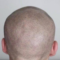 The Best Scalp Micropigmentation Aftercare Tips And Tricks