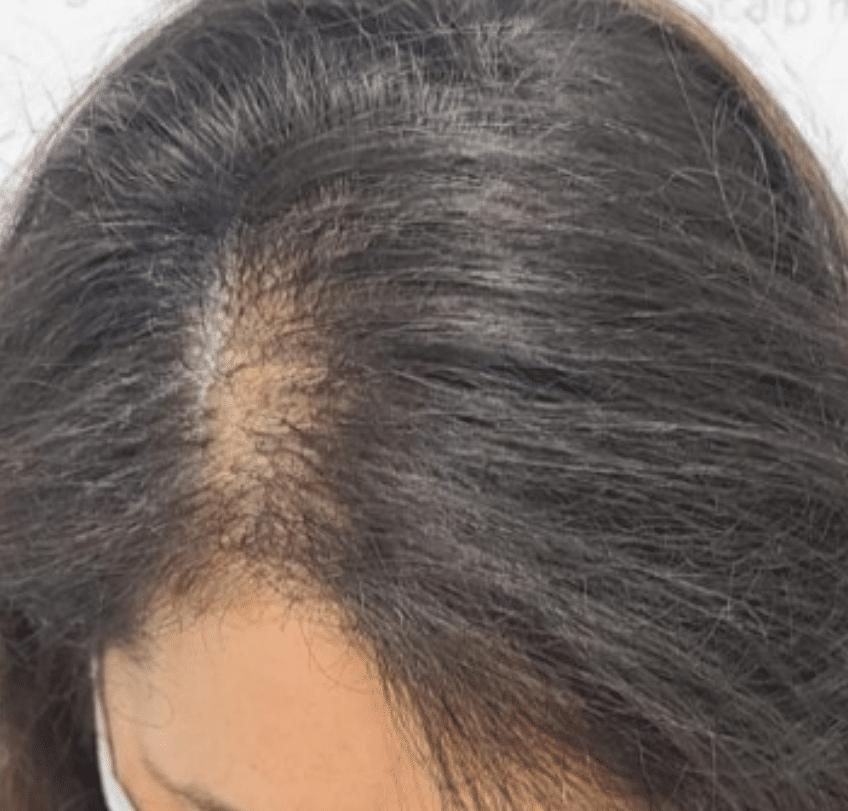 Does Scalp Micropigmentation Work for Women?