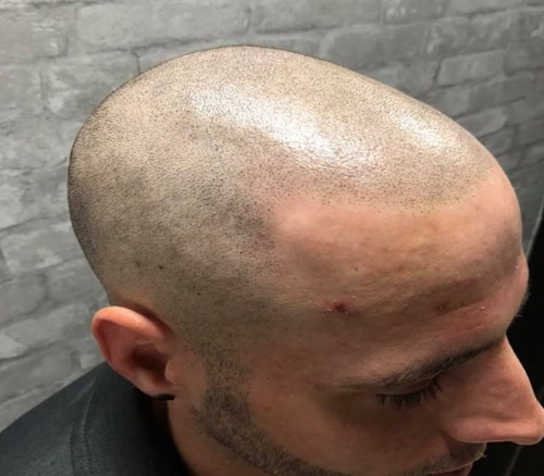 Experiencing A Shining Head After Scalp Micropigmentation