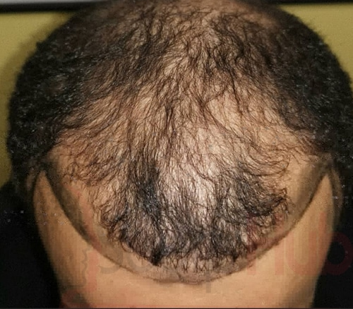 The Signs You May Be Experiencing Hair Loss