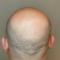 Will Scalp Micropigmentation Fix My Thinning Hair?