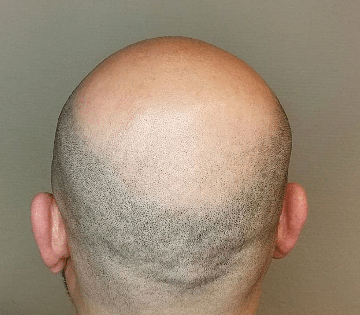 Will Scalp Micropigmentation Fix My thinning hair