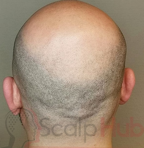 How To Shave When You've Had Scalp Micropigmentation