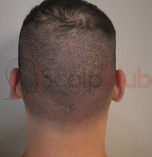 Scalp Micro pigmentation for Hair transplant after