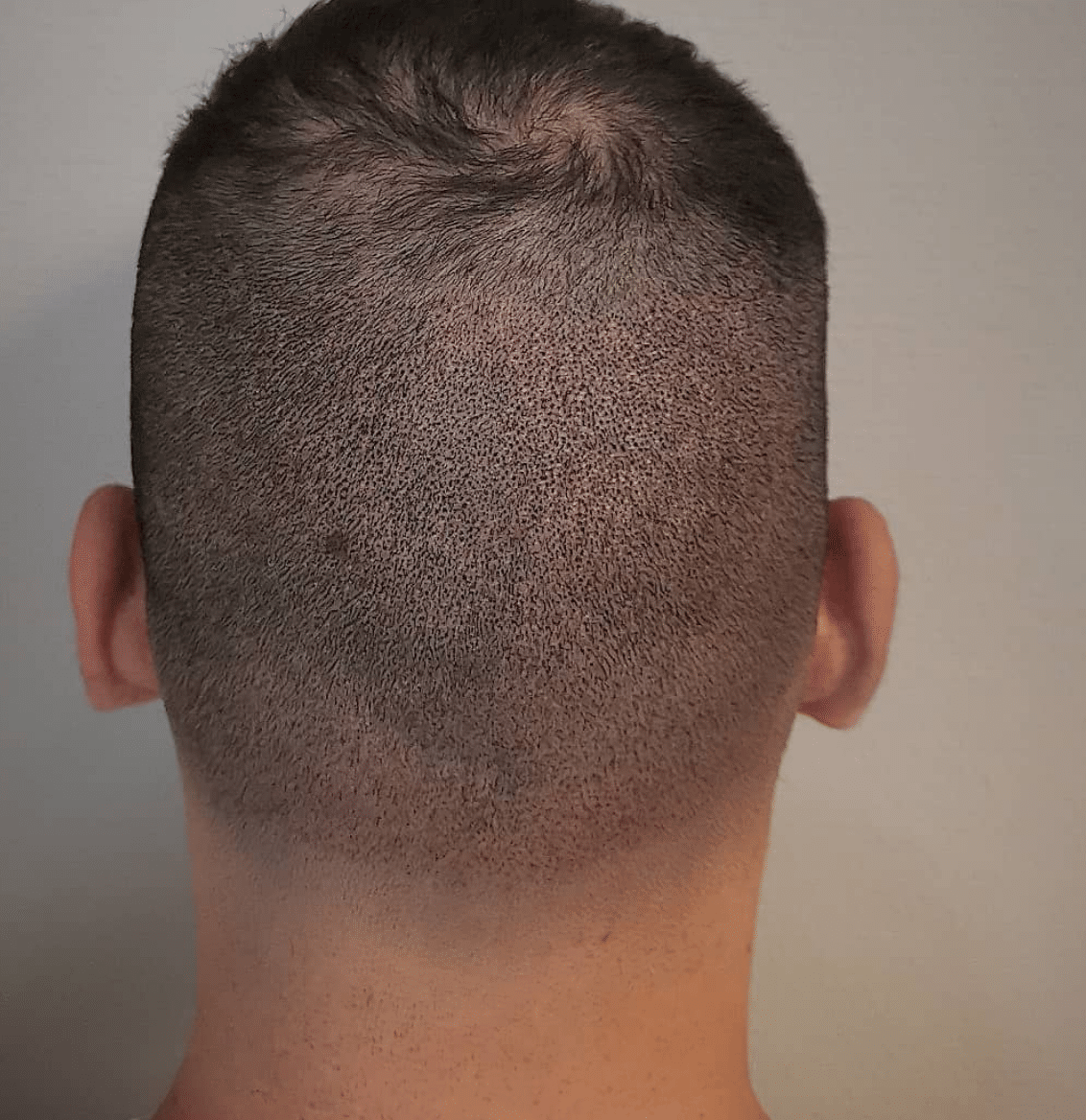 Scalp Micro pigmentation for Hair transplant before pic