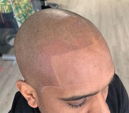 Will Scalp Micropigmentation Fix My Hairline?