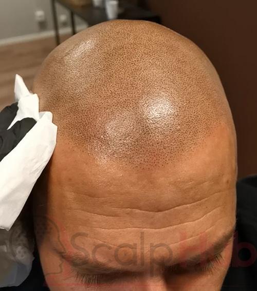 Does Scalp Micropigmentation Last?