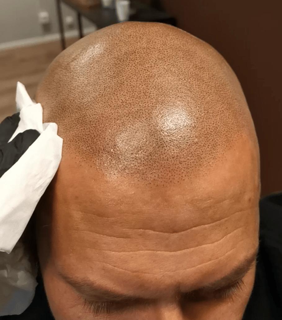 Does Scalp Micropigmentation Last long?