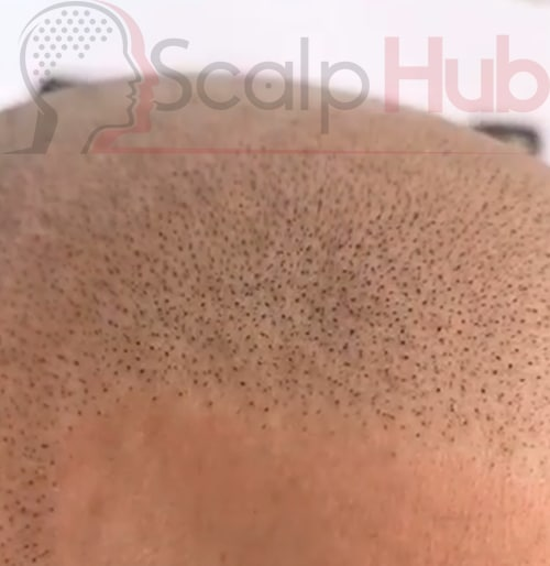 Scalp Micropigmentation versus other hair loss treatments