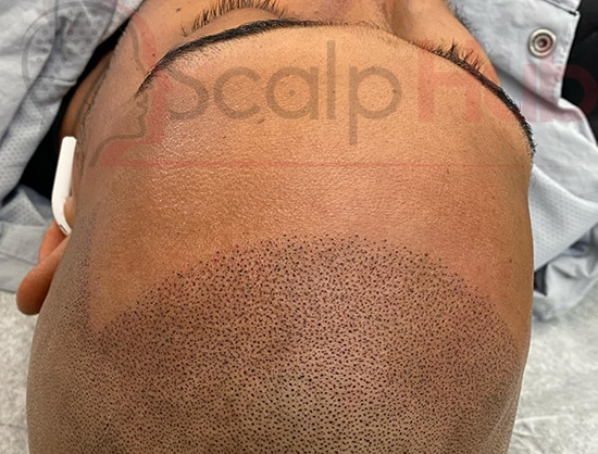 what happens during a consultation for Scalp Micropigmentation?