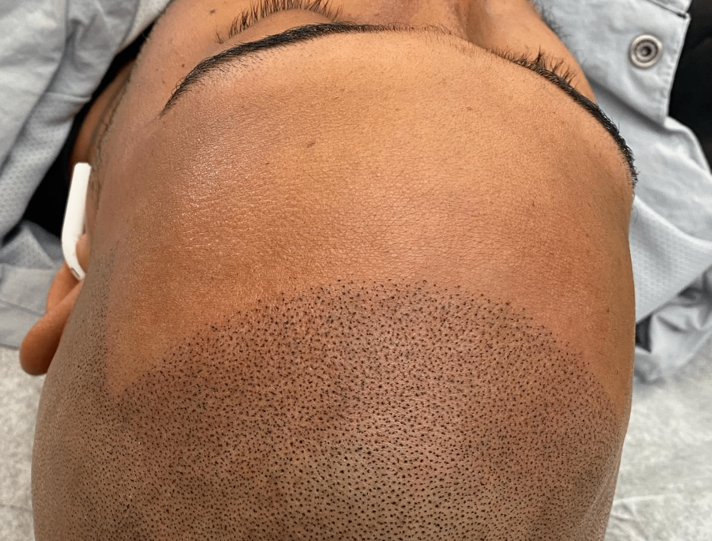 what happens during a consultation for Scalp Micropigmentation