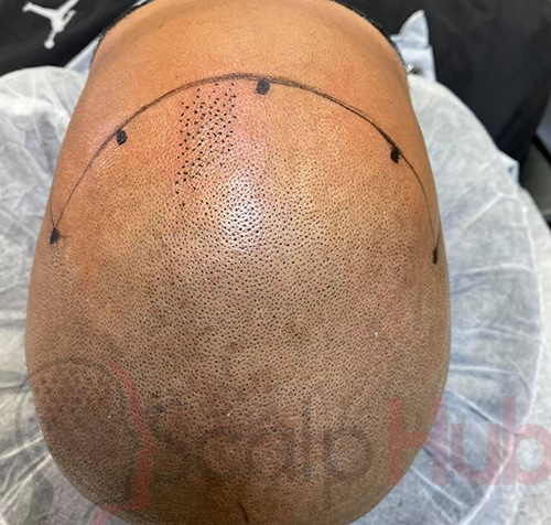 Scalp Micropigmentation Picking the hair line you want