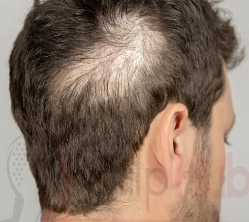 Scalp Tattoo, Hair Tattoo, Scalp Micropigmentation; What do all these terms mean in 2021?