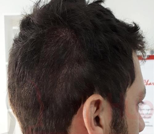 Scalp Tattoo, Hair Tattoo, Scalp Micropigmentation; What do all these terms mean?