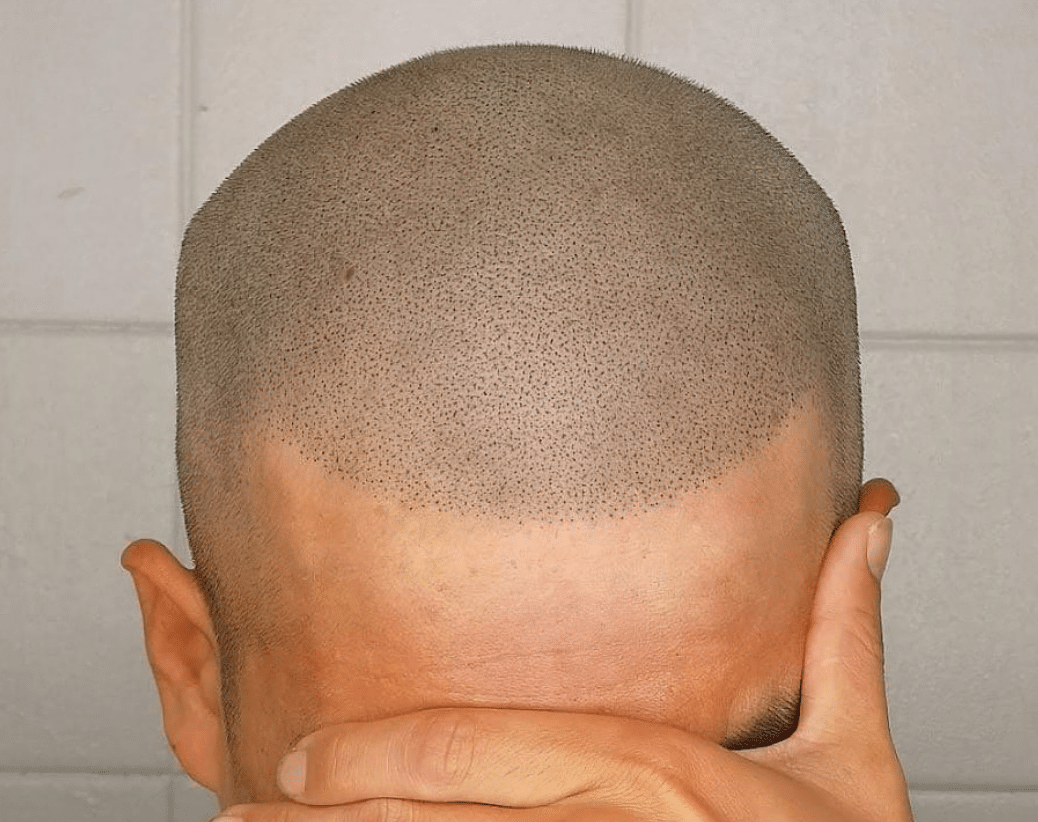 What Should You Expect During Your Scalp Micropigmentation Session?