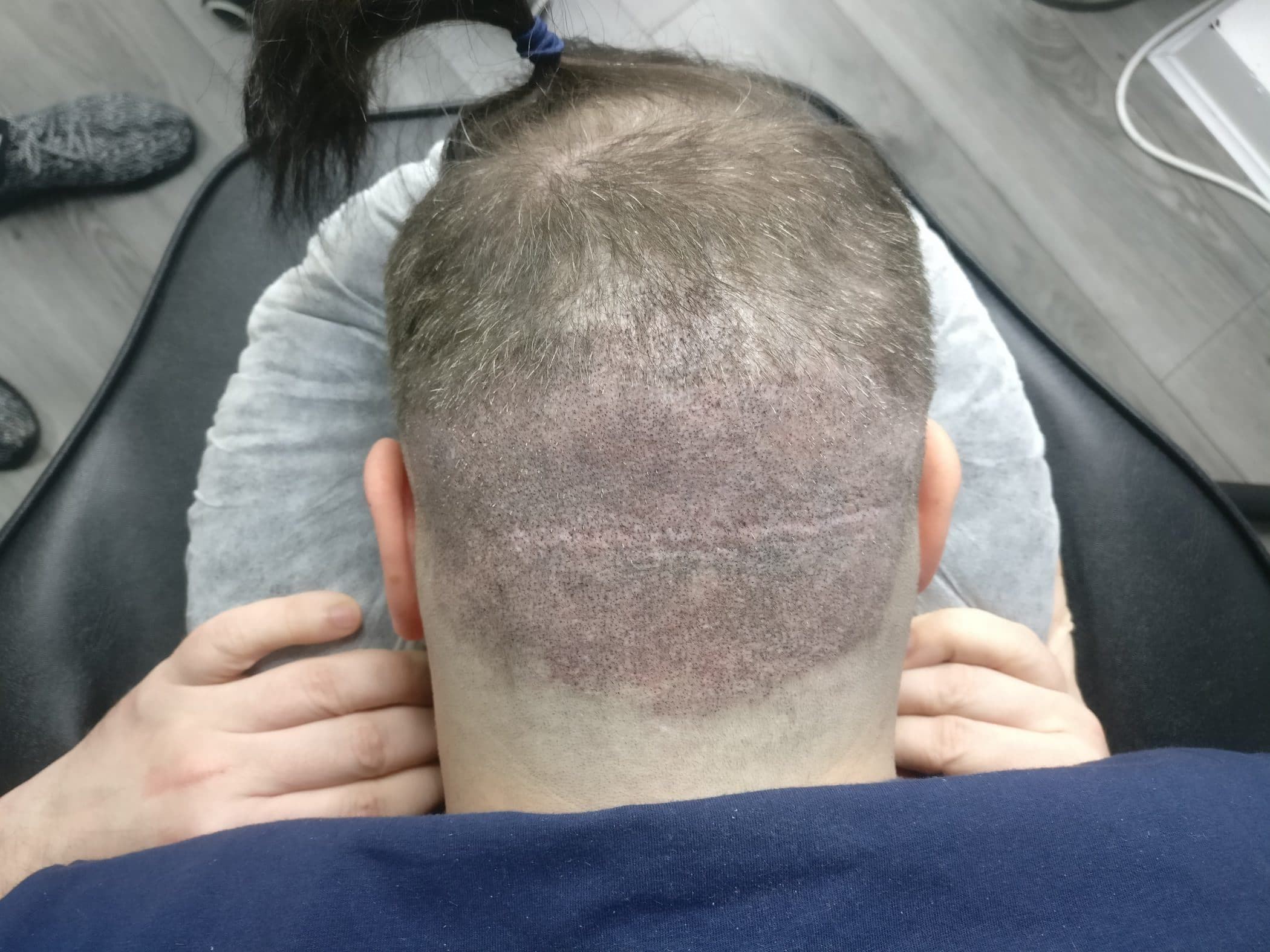 Scalp micropigmentation and getting a hair transplant